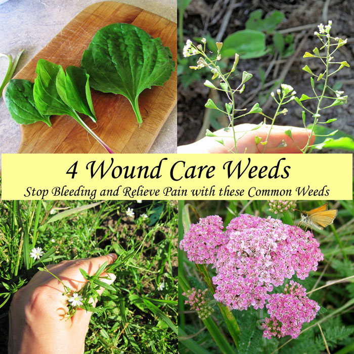 4 Wound Care Weeds
