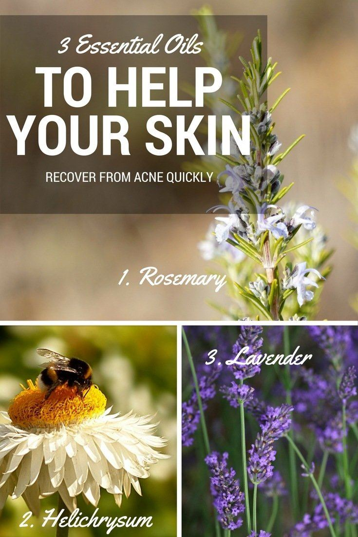 3 Essential Oils To Help Your Skin Recover Quickly
