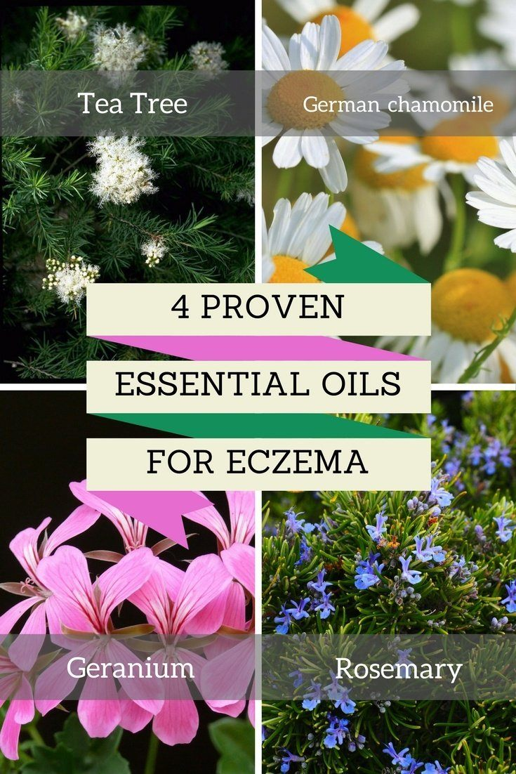 Essential oils for eczema 1