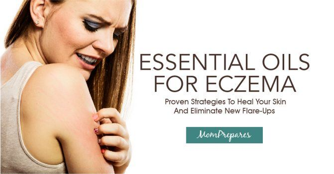 Essential Oils For Eczema: Proven Strategies To Heal Your Skin And Eliminate New Flare-Ups