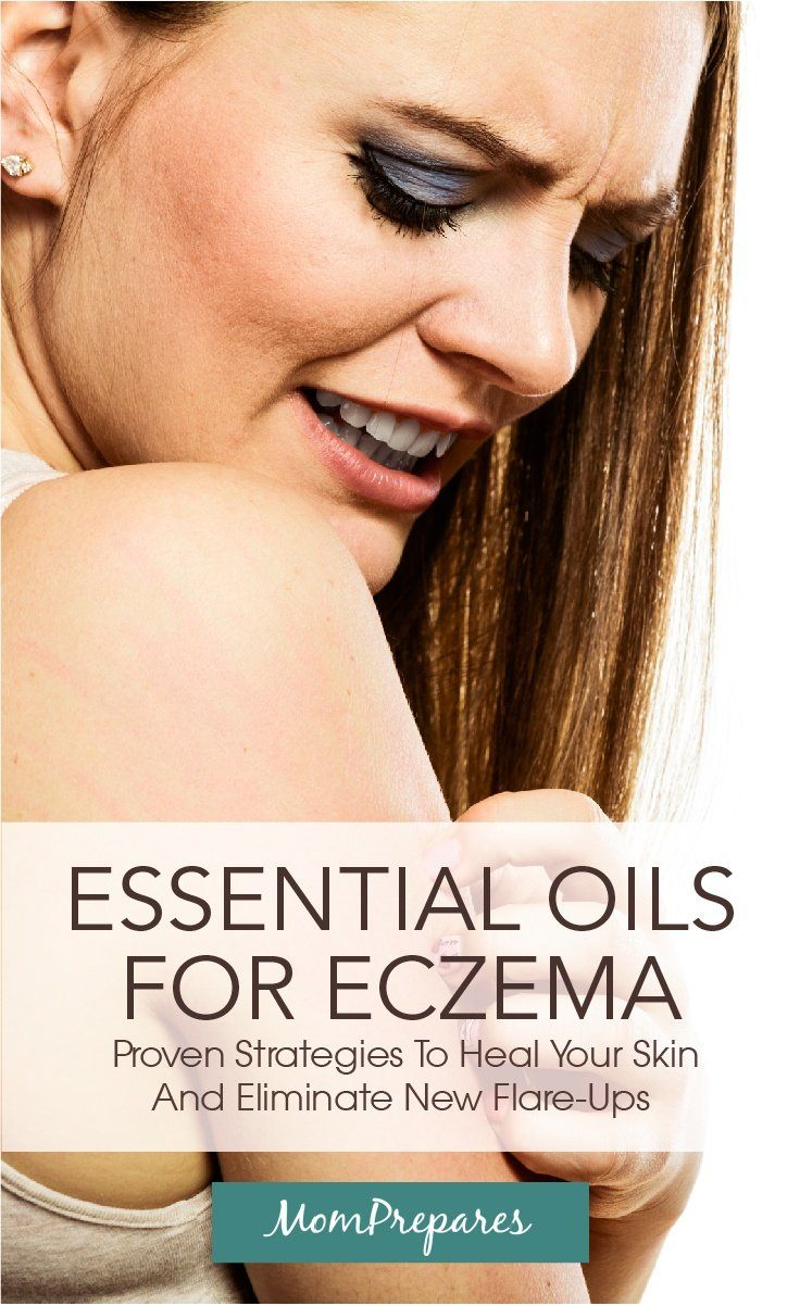 essential oils for eczema pt 1