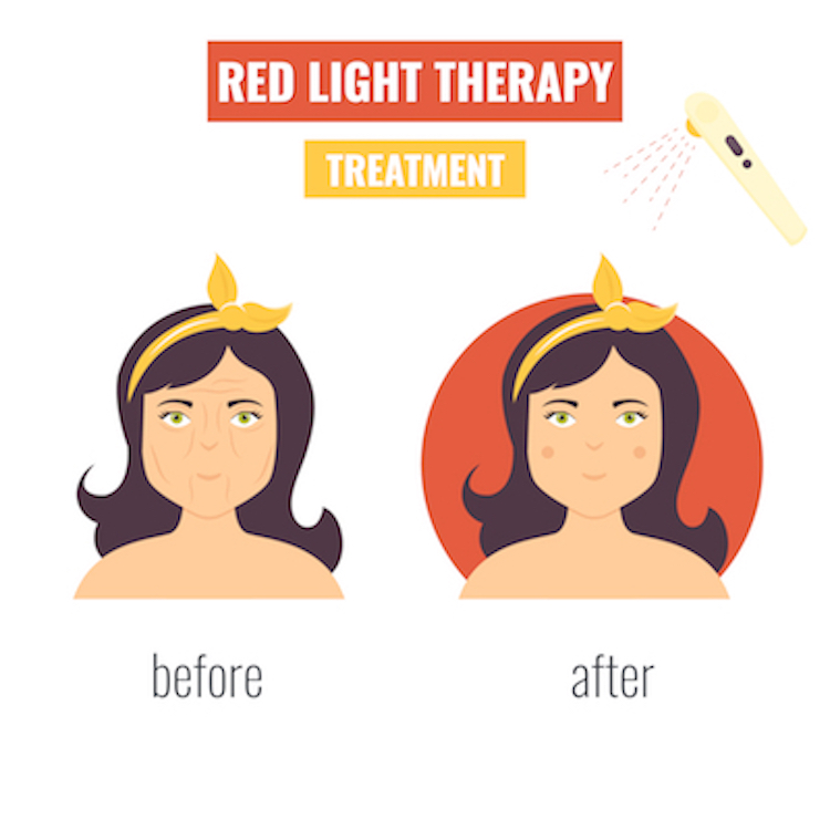 Red Light Therapy for Anti-aging