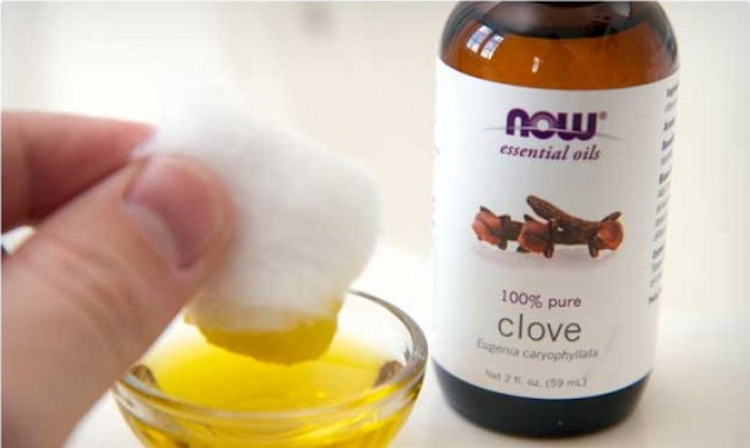 Have Tooth Pain 11 Best Essential Oils For Toothaches