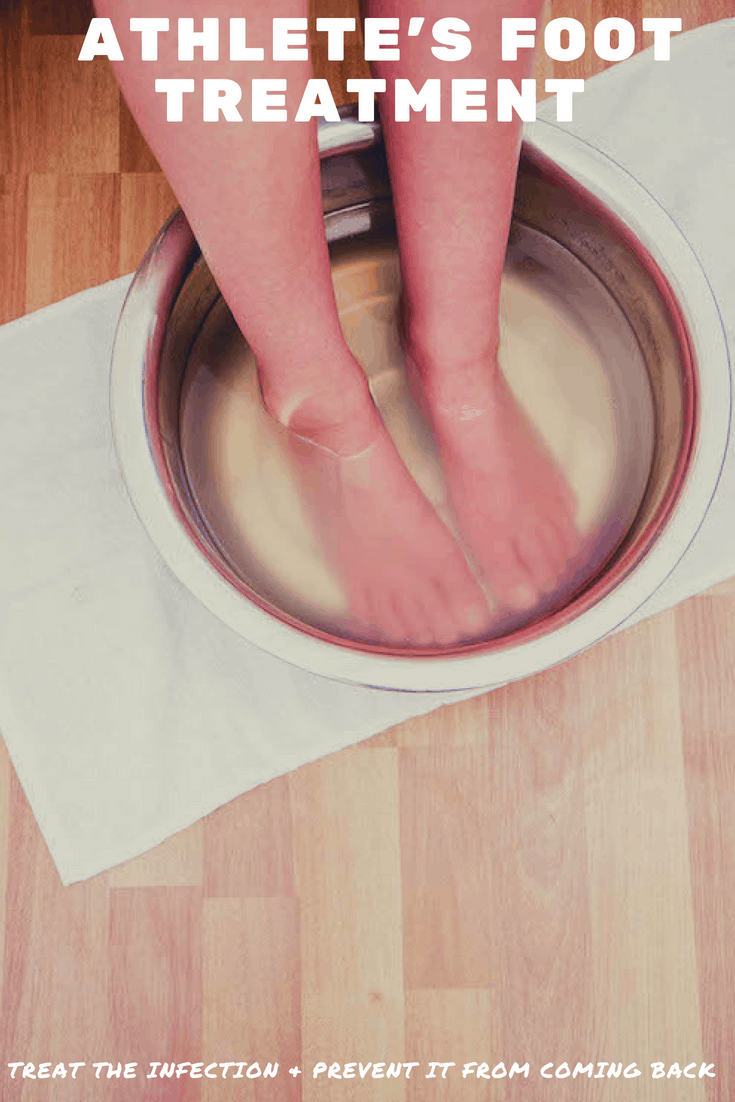 Homemade Athletes Foot Treatment